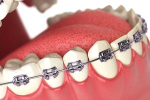 矯正歯科治療のメリット・デメリット