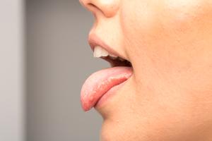 口臭の治療法