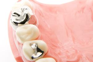 銀歯とは?