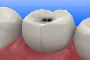 二次虫歯とは?