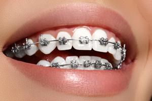 矯正治療中は歯磨きがしにくい