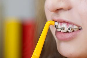 矯正治療中の歯磨きの仕方