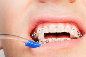 矯正治療中の虫歯対策、どうしたらいい?