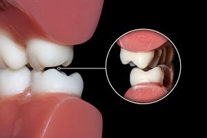 歯ぎしりはほとんどの人がしている