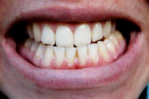 歯ぎしりはなぜ良くない?歯ぎしりがもたらす悪影響