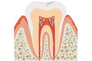 歯の神経を取ったらもう歯は痛くなくなる?