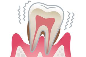 歯周病とアルツハイマー型認知症の関係