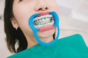 歯の治療の様子