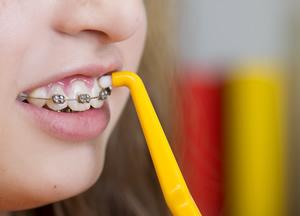 矯正中の口内炎予防法